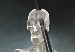 Aide-mémoire : Phineas Gage, 170 ans